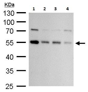 Western blot - Anti-ATG4C antibody - C-terminal (ab227610)