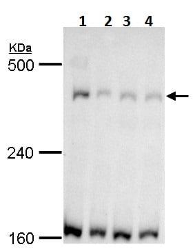 Western blot - Anti-TRRAP antibody - N-terminal (ab227613)