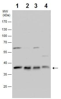 Western blot - Anti-PPP1CB antibody (ab227620)