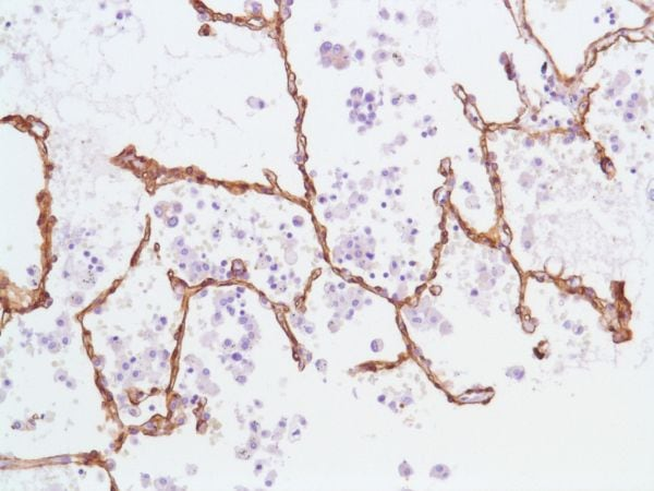 Immunohistochemistry (Formalin/PFA-fixed paraffin-embedded sections) - Anti-Caveolin-1 antibody [SP43] - C-terminal (ab227636)