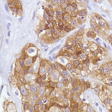 Immunohistochemistry (Formalin/PFA-fixed paraffin-embedded sections) - Anti-Met (c-Met) antibody [SP44] - C-terminal (ab227637)