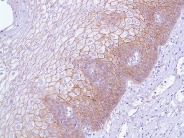 Immunohistochemistry (Formalin/PFA-fixed paraffin-embedded sections) - Anti-delta 1 Catenin/CAS antibody [SP63] - C-terminal (ab227638)