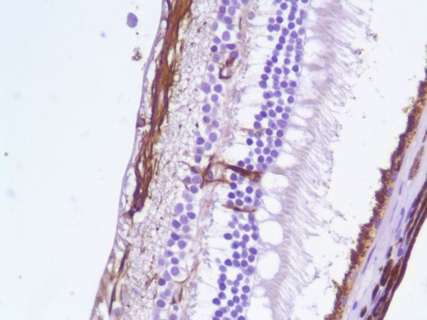 Immunohistochemistry (Formalin/PFA-fixed paraffin-embedded sections) - Anti-GFAP antibody [SP78] - C-terminal (ab227641)