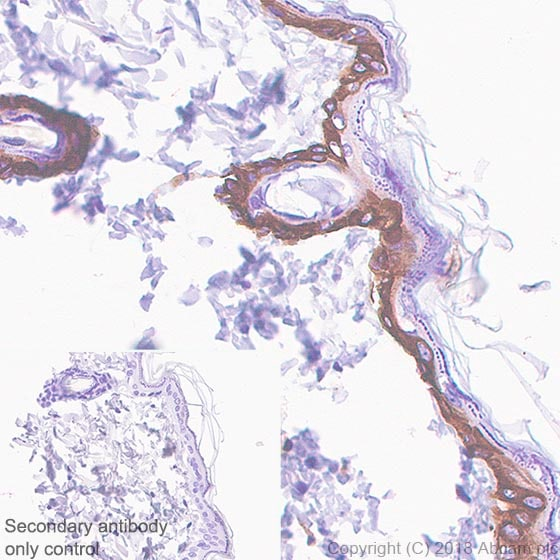 Immunohistochemistry (Formalin/PFA-fixed paraffin-embedded sections) - Anti-KRT6C antibody [SP87] (ab227643)