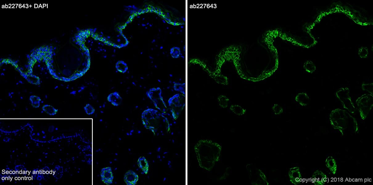 Immunohistochemistry (Frozen sections) - Anti-KRT6C antibody [SP87] (ab227643)