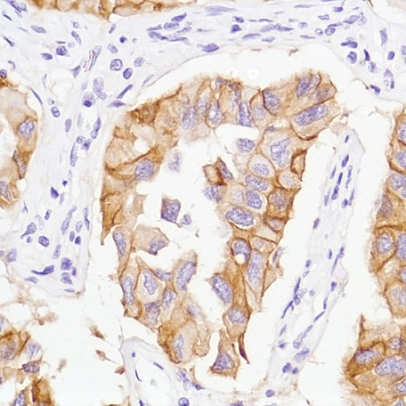 Immunohistochemistry (Formalin/PFA-fixed paraffin-embedded sections) - Anti-EGFR (mutated L858 R) antibody [SP125] (ab227647)
