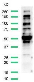 Western blot - Anti-FOXP1 antibody [SP133] - C-terminal (ab227649)