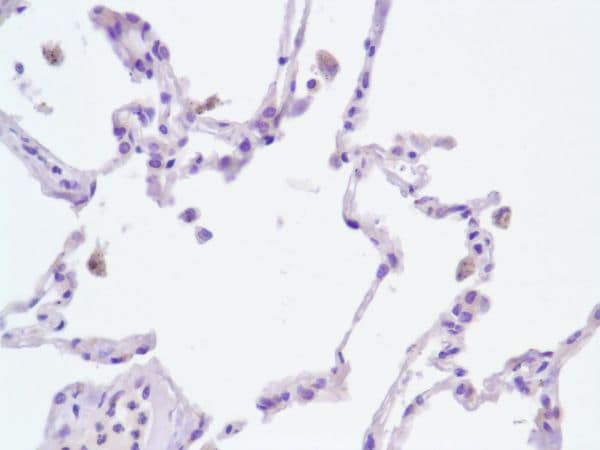 Immunohistochemistry (Formalin/PFA-fixed paraffin-embedded sections) - Anti-TWEAKR/FN14 antibody [SP134] - C-terminal (ab227650)