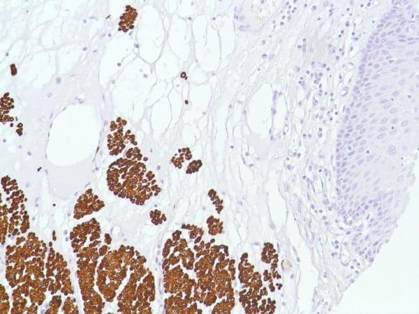 Immunohistochemistry (Formalin/PFA-fixed paraffin-embedded sections) - Anti-Desmin antibody [SP138] - C-terminal (ab227651)