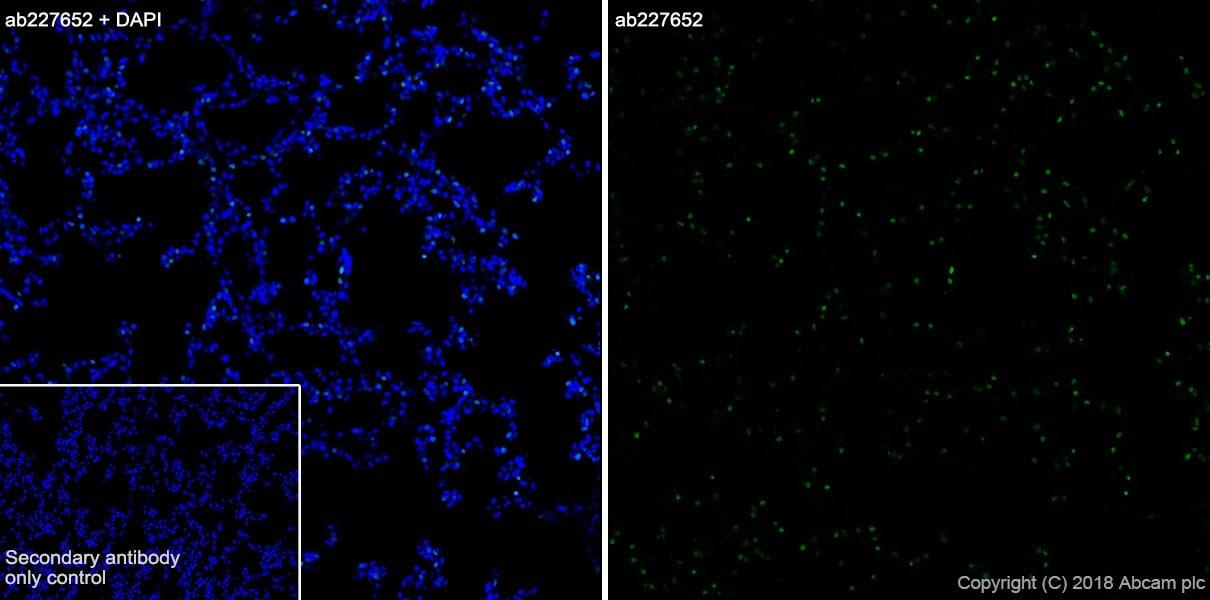 Immunohistochemistry (Frozen sections) - Anti-TTF1 antibody [SP141] (ab227652)