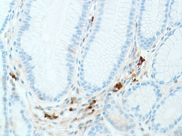 Immunohistochemistry (Formalin/PFA-fixed paraffin-embedded sections) - Anti-Kappa light chain antibody [SP148] (ab227654)