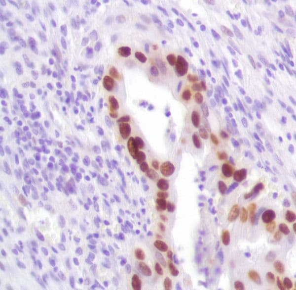 Immunohistochemistry (Formalin/PFA-fixed paraffin-embedded sections) - Anti-p53 antibody [SP161] (ab227655)