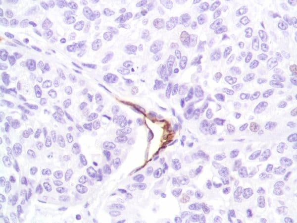 Immunohistochemistry (Formalin/PFA-fixed paraffin-embedded sections) - Anti-CD31 antibody [SP164] - C-terminal (ab227656)