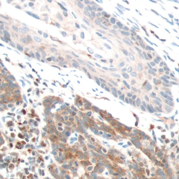 Immunohistochemistry (Formalin/PFA-fixed paraffin-embedded sections) - Anti-PTEN antibody [SP170] - N-terminal (ab227657)