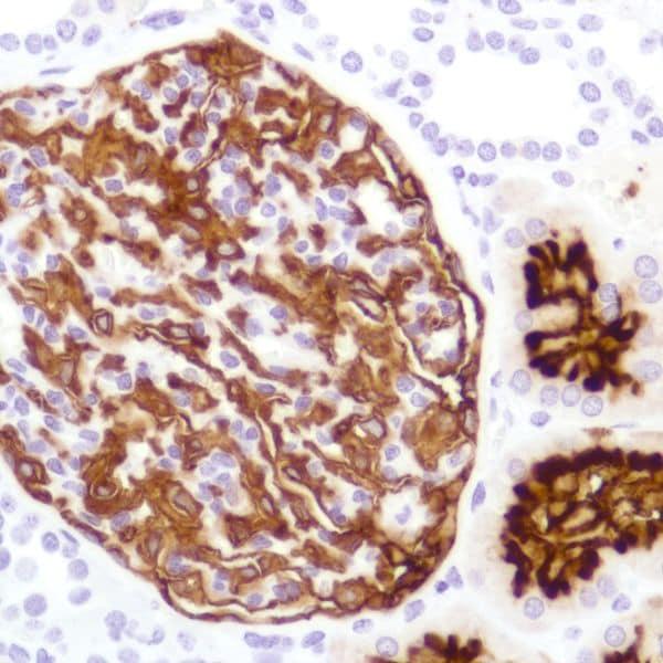 Immunohistochemistry (Formalin/PFA-fixed paraffin-embedded sections) - Anti-CD10 antibody [SP179] - N-terminal (ab227659)