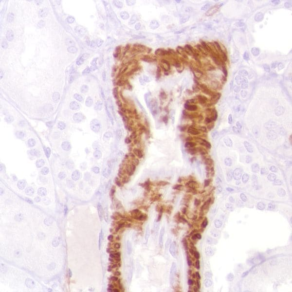 Immunohistochemistry (Formalin/PFA-fixed paraffin-embedded sections) - Anti-Calponin 1 antibody [SP180] - C-terminal (ab227660)