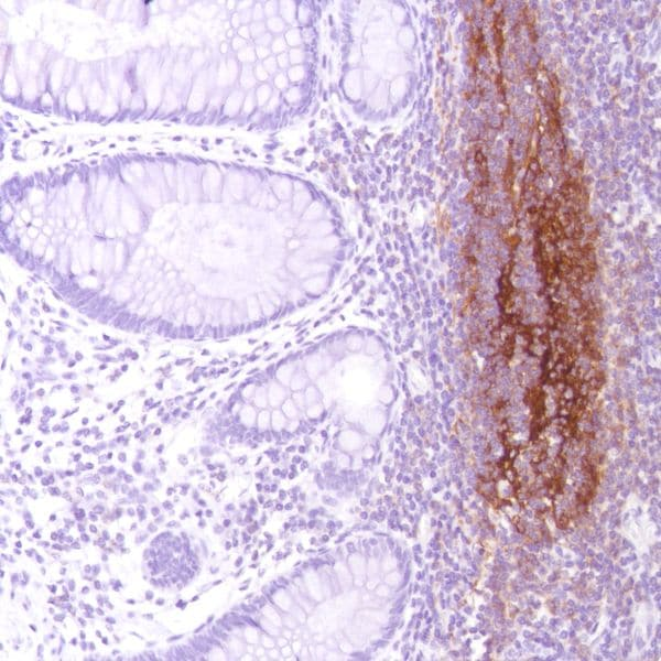 Immunohistochemistry (Formalin/PFA-fixed paraffin-embedded sections) - Anti-CD21 antibody [SP186] - C-terminal (ab227662)