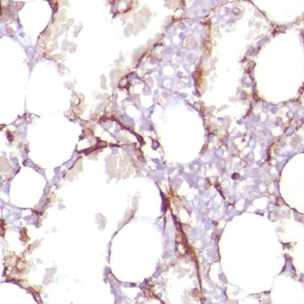 Immunohistochemistry (Formalin/PFA-fixed paraffin-embedded sections) - Anti-CD13 antibody [SP187] (ab227663)