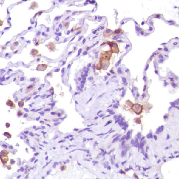 Immunohistochemistry (Formalin/PFA-fixed paraffin-embedded sections) - Anti-CD13 antibody [SP187] (ab227663)