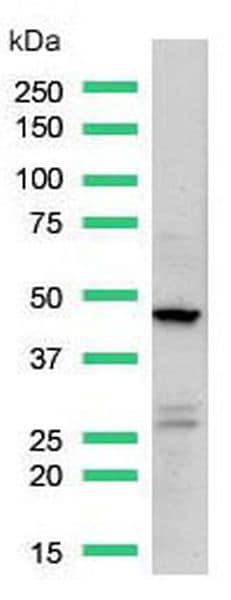 Western blot - Anti-CD16a antibody [SP189] - C-terminal (ab227665)