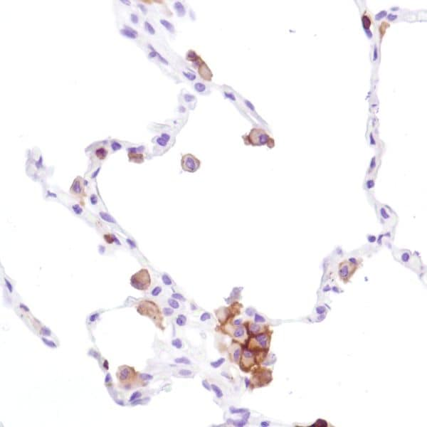 Immunohistochemistry (Formalin/PFA-fixed paraffin-embedded sections) - Anti-CD16a antibody [SP189] - C-terminal (ab227665)