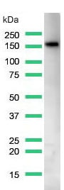 Western blot - Anti-CD21 antibody [SP199] (ab227668)