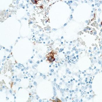 Immunohistochemistry (Formalin/PFA-fixed paraffin-embedded sections) - Anti-CD42b antibody [SP202] (ab227669)