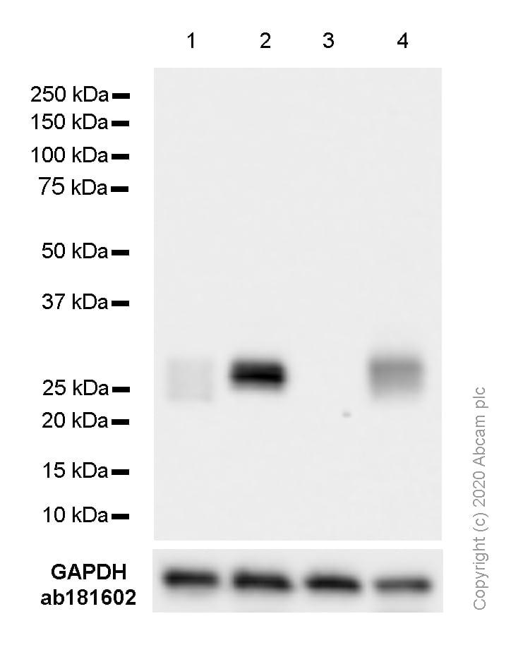 Western blot - Anti-HLA-DPB1 antibody [SP229] (ab227676)