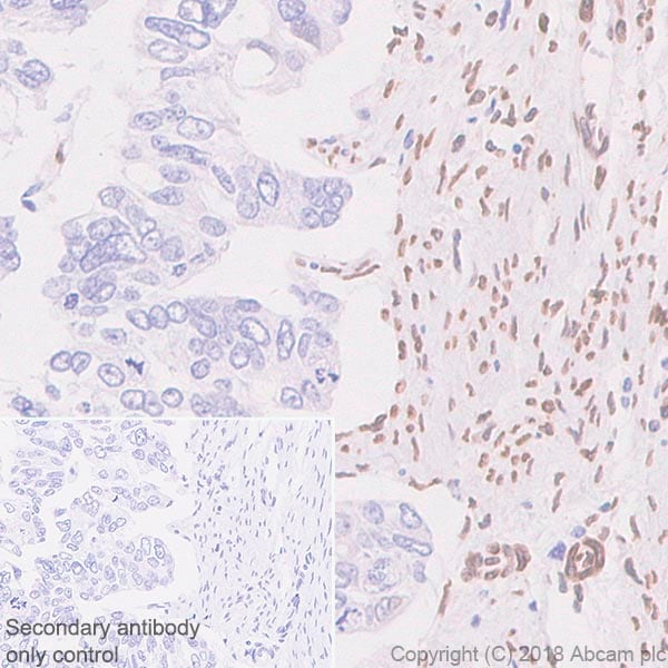 Immunohistochemistry (Formalin/PFA-fixed paraffin-embedded sections) - Anti-Fbxw7 antibody [SP237] (ab227677)
