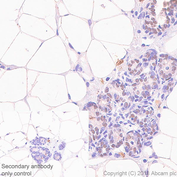 Immunohistochemistry (Formalin/PFA-fixed paraffin-embedded sections) - Anti-SOX10 antibody [SP267] (ab227680)