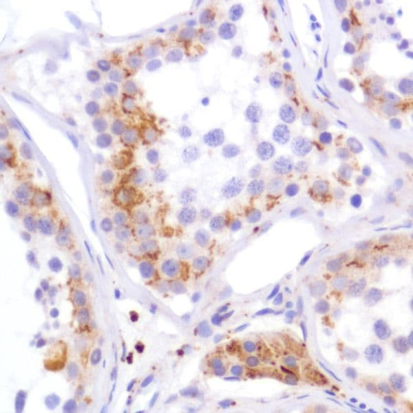 Immunohistochemistry (Formalin/PFA-fixed paraffin-embedded sections) - Anti-PDK1 antibody [SP270] - C-terminal (ab227682)