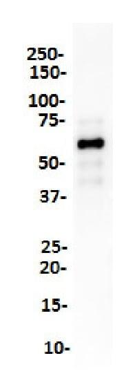 Western blot - Anti-SOX10 antibody [SP275] (ab227684)