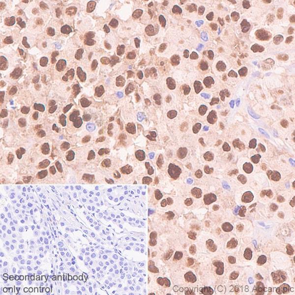 Immunohistochemistry (Formalin/PFA-fixed paraffin-embedded sections) - Anti-SOX10 antibody [SP275] (ab227684)