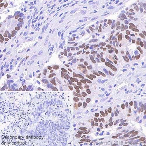 Immunohistochemistry (Formalin/PFA-fixed paraffin-embedded sections) - Anti-SATB2 antibody [SP281] - C-terminal (ab227686)