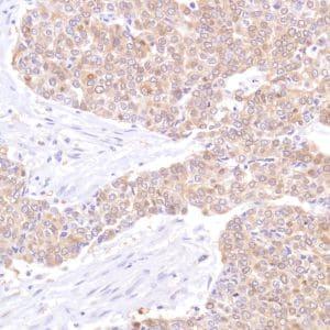 Immunohistochemistry (Formalin/PFA-fixed paraffin-embedded sections) - Anti-STAT5 antibody [SP283] - C-terminal (ab227687)