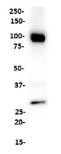 Western blot - Anti-CD19 antibody [SP291] - C-terminal (ab227688)