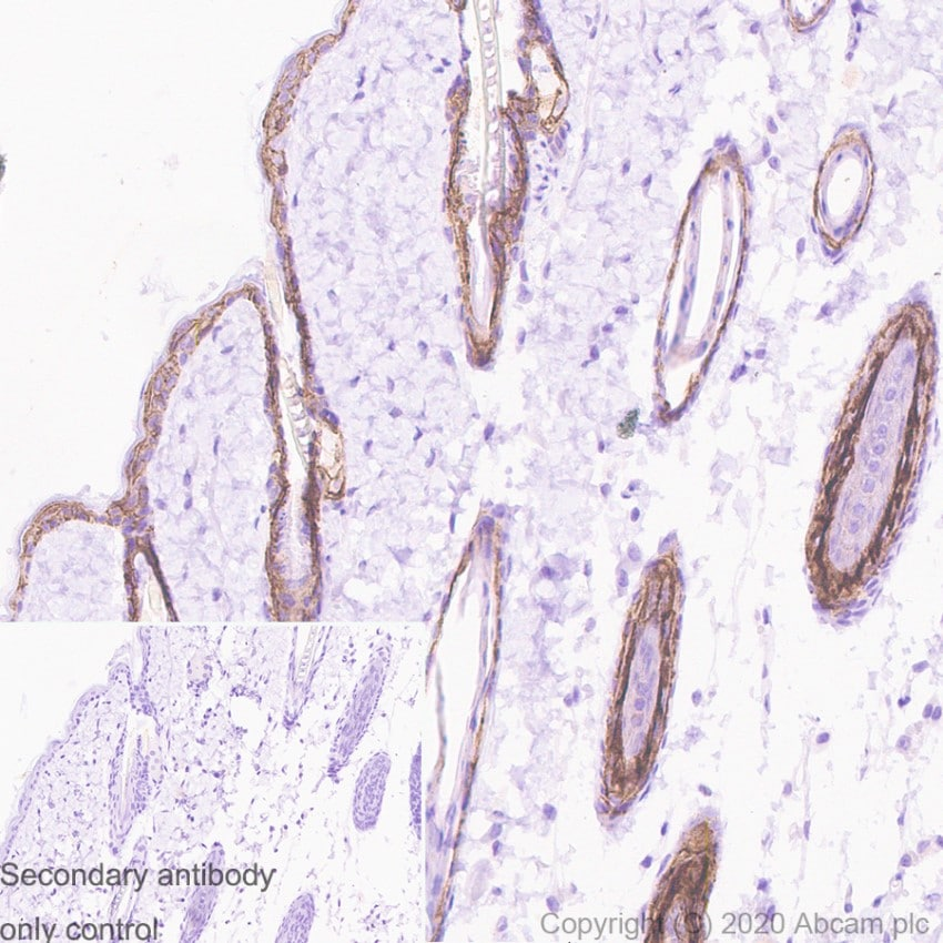 Immunohistochemistry (Formalin/PFA-fixed paraffin-embedded sections) - Anti-TROP2 antibody [SP293] - C-terminal (ab227689)