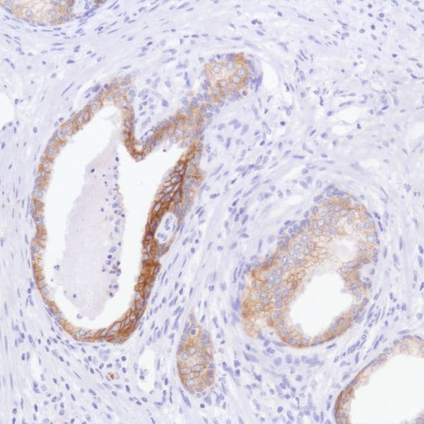 Immunohistochemistry (Formalin/PFA-fixed paraffin-embedded sections) - Anti-TROP2 antibody [SP295] (ab227691)