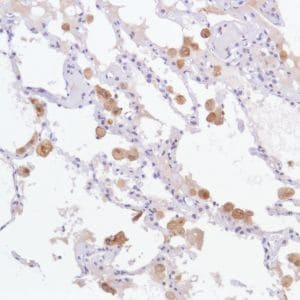 Immunohistochemistry (Formalin/PFA-fixed paraffin-embedded sections) - Anti-GPNMB antibody [SP299] (ab227695)