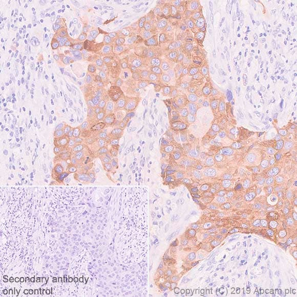 Immunohistochemistry (Formalin/PFA-fixed paraffin-embedded sections) - Anti-SLC39A6/ZIP-6 antibody [SP300] (ab227696)