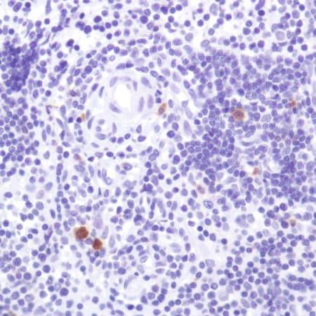 Immunohistochemistry (Formalin/PFA-fixed paraffin-embedded sections) - Anti-CD103 antibody [SP301] (ab227697)
