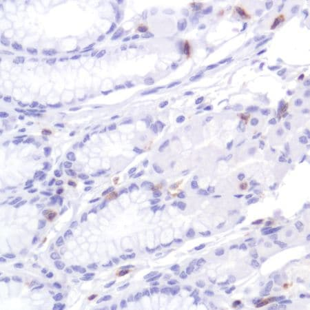 Immunohistochemistry (Formalin/PFA-fixed paraffin-embedded sections) - Anti-CD2 antibody [SP304] (ab227698)