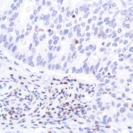 Immunohistochemistry (Formalin/PFA-fixed paraffin-embedded sections) - Anti-CD2 antibody [SP304] (ab227698)