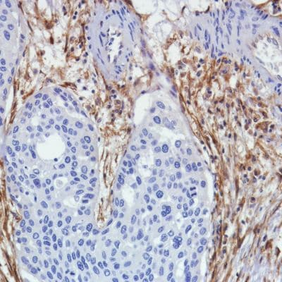 Immunohistochemistry (Formalin/PFA-fixed paraffin-embedded sections) - Anti-Fibroblast activation protein, alpha antibody [SP325] (ab227703)