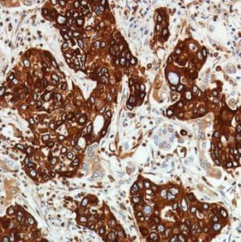 Immunohistochemistry (Formalin/PFA-fixed paraffin-embedded sections) - Anti-TMEM173 antibody [SP338] (ab227704)