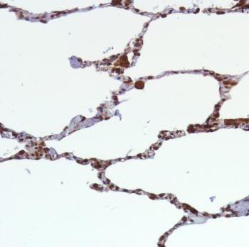 Immunohistochemistry (Formalin/PFA-fixed paraffin-embedded sections) - Anti-TMEM173 antibody [SP339] (ab227705)