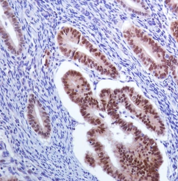 Immunohistochemistry (Formalin/PFA-fixed paraffin-embedded sections) - Anti-PAX8 antibody [SP348] - N-terminal (ab227707)