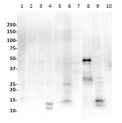 Western blot - Anti-PAX8 antibody [SP348] - N-terminal (ab227707)