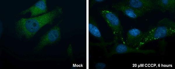 Immunocytochemistry/ Immunofluorescence - Anti-ATG16L1 antibody (ab227714)