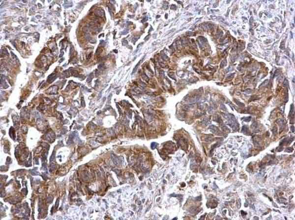 Immunohistochemistry (Formalin/PFA-fixed paraffin-embedded sections) - Anti-ATG16L1 antibody (ab227714)